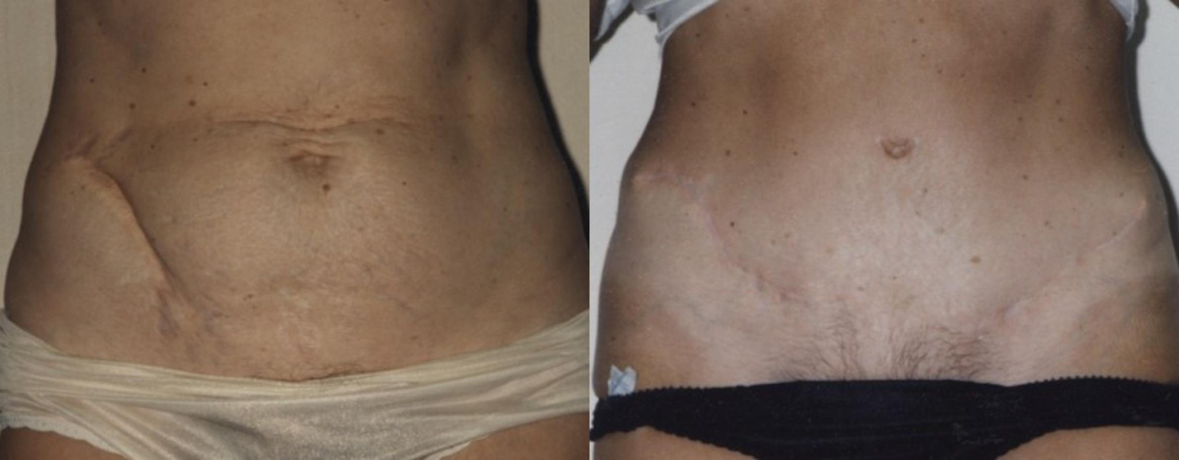 Abdominoplasty (Tummy Tuck) Before & After Photo | Jersey City, New Jersey | The Derm Group