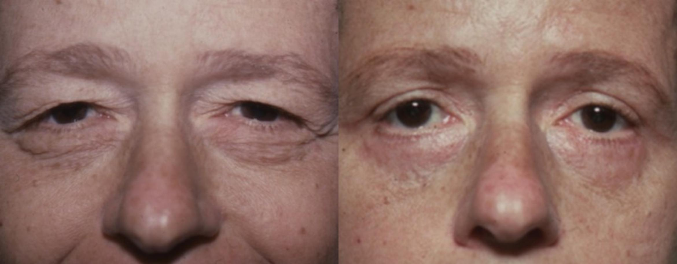 Blepharoplasty Before & After Photo | Jersey City, New Jersey | The Derm Group