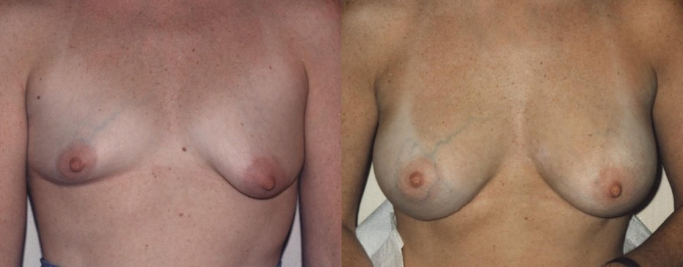 Breast Augmentation Before & After Photo | Jersey City, New Jersey | The Derm Group