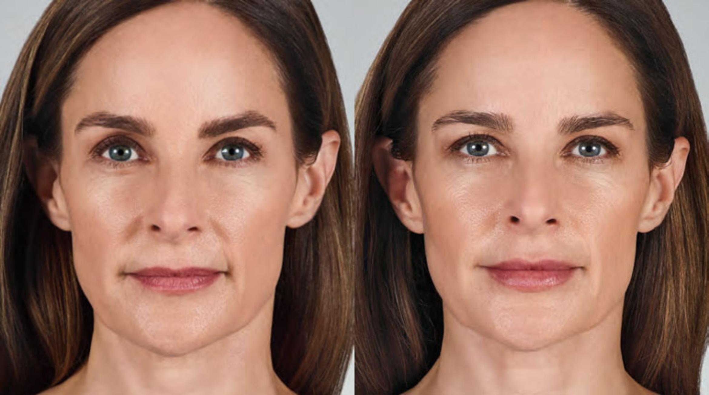 JUVÉDERM® Before & After Photo | Jersey City, New Jersey | The Derm Group