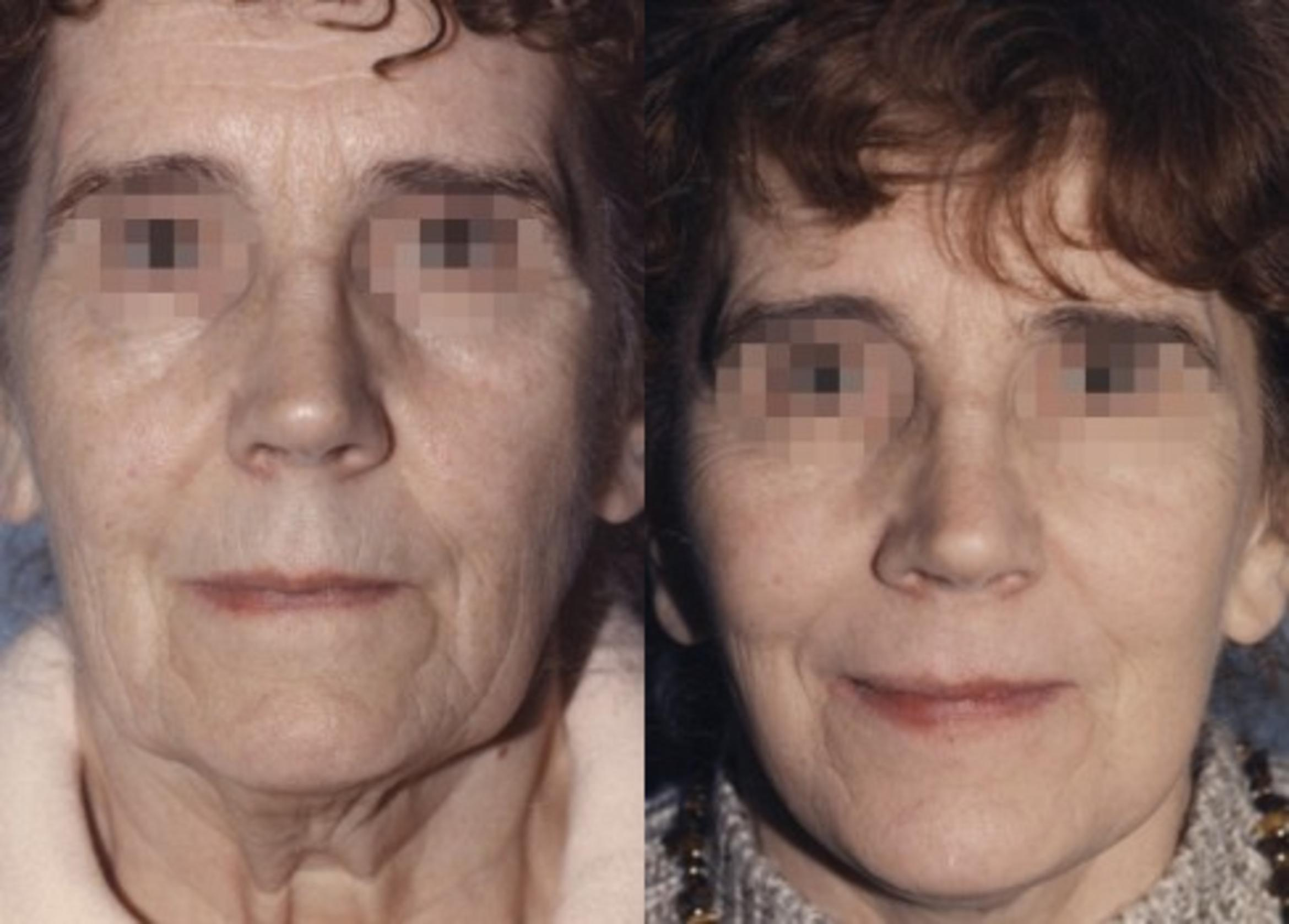 Face / Neck Lift Before & After Photo | Jersey City, New Jersey | The Derm Group