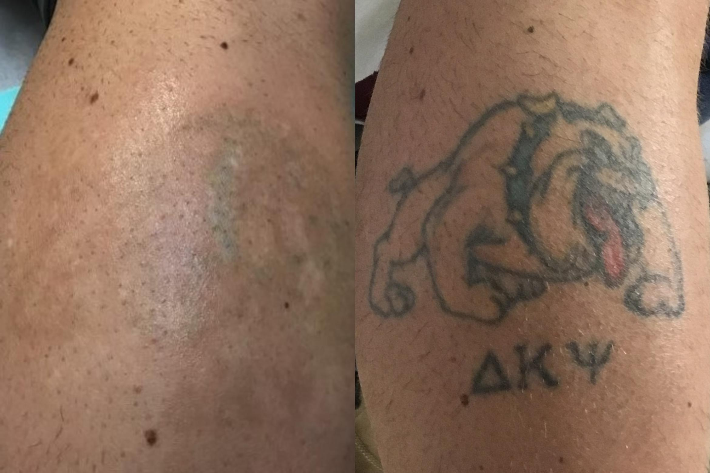 Laser Tattoo Removal Before & After Photo | Jersey City, New Jersey | The Derm Group
