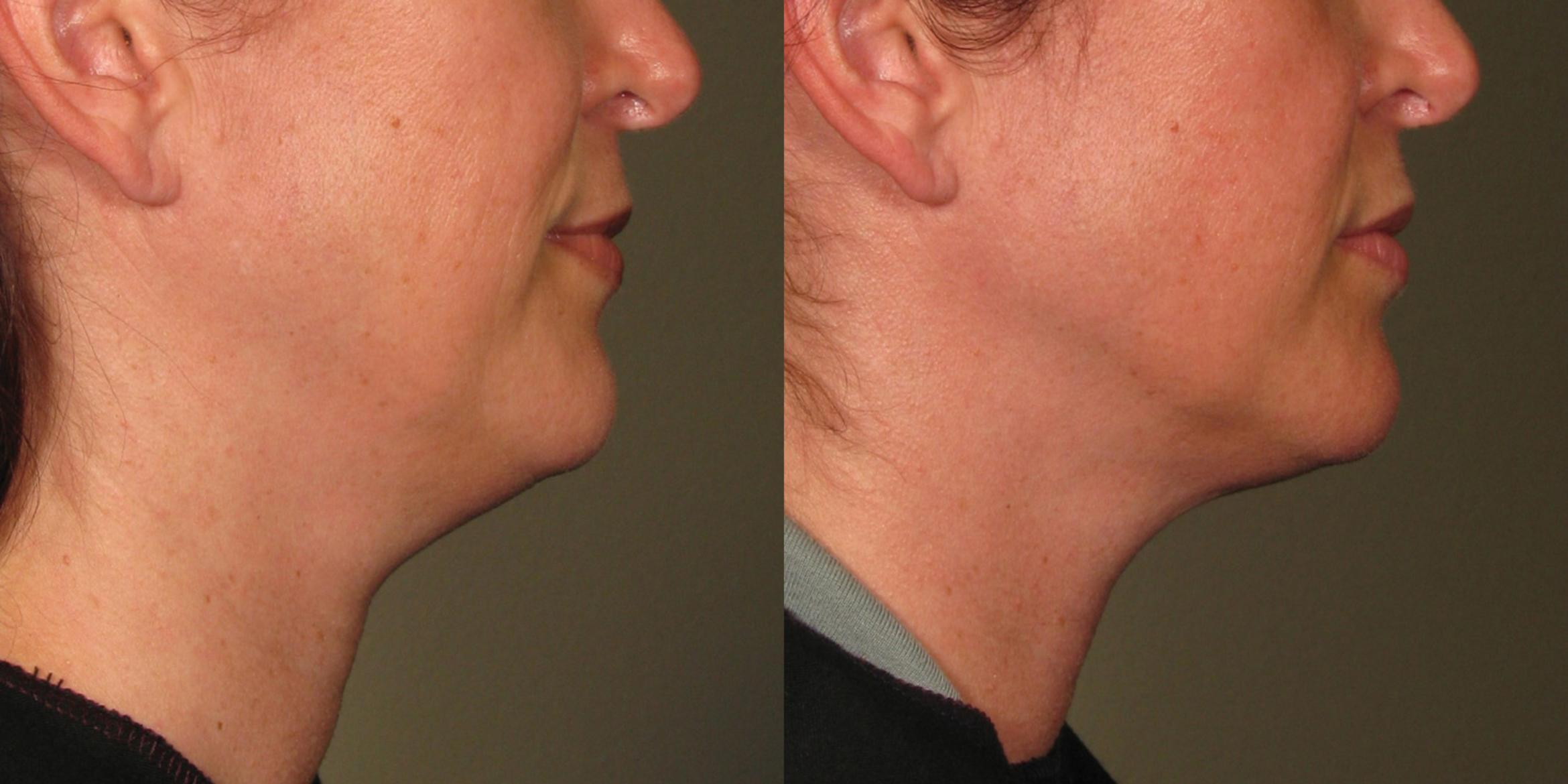 Ultherapy® Before & After Photo | Jersey City, New Jersey | The Derm Group