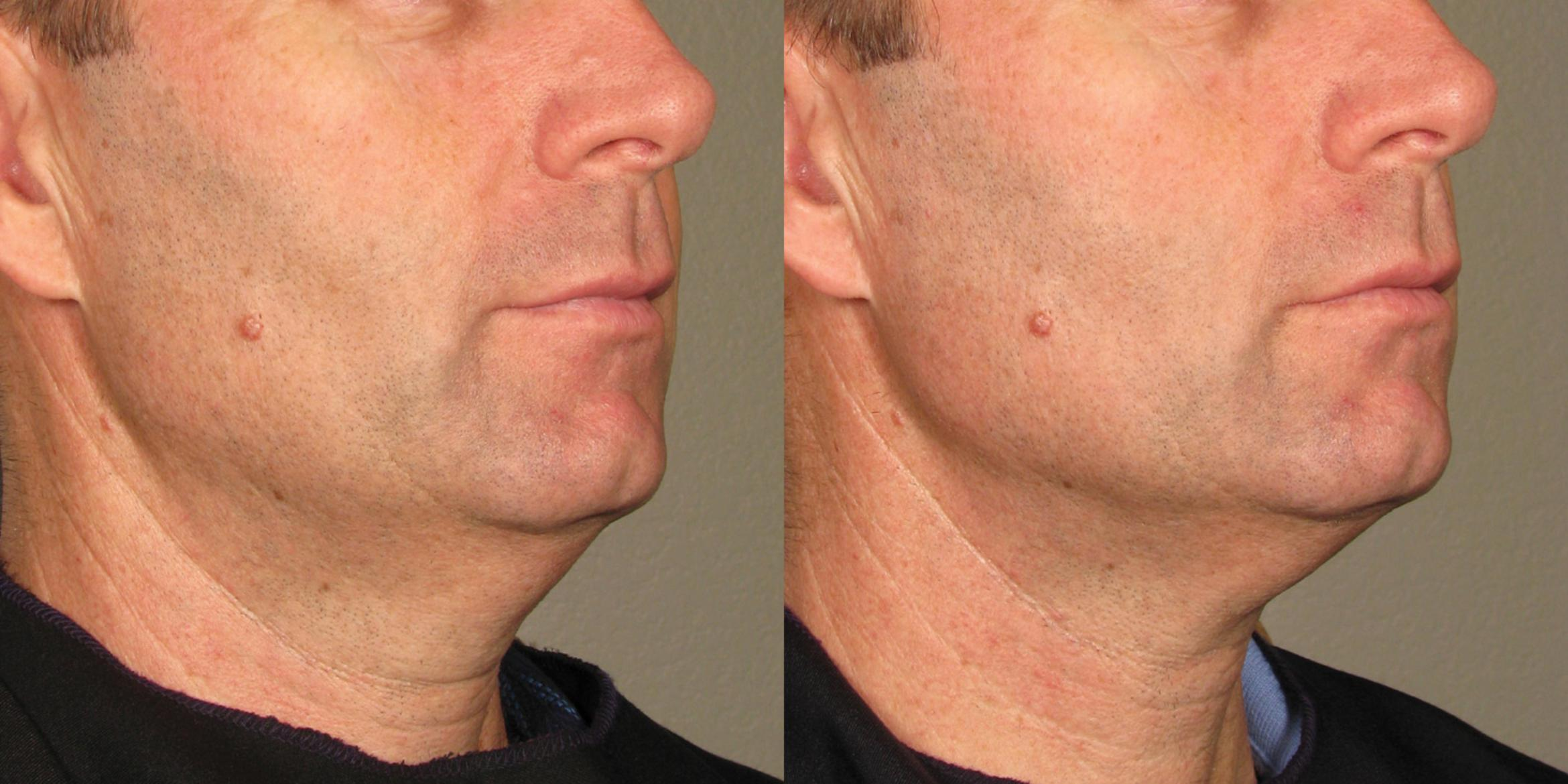 Ultherapy® Before & After Photo | New Jersey & Pennsylvania,  | The Derm Group
